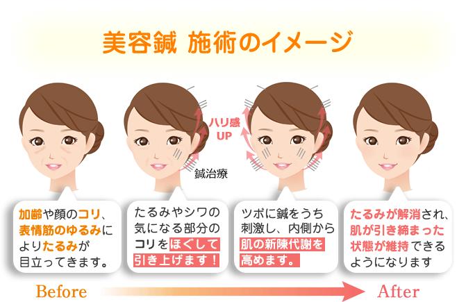 美容鍼の施術イメージ