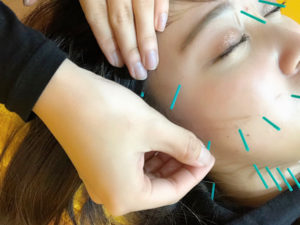 美容鍼の施術の様子